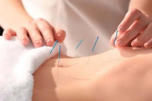 알아 두어야 할 침술의 이점 5가지