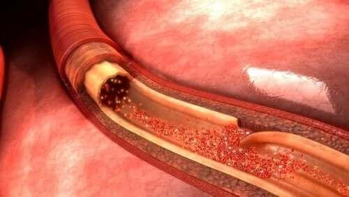 대동맥 박리는 무엇이며 어떻게 치료할까?