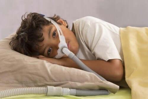 소아 폐쇄 수면무호흡증