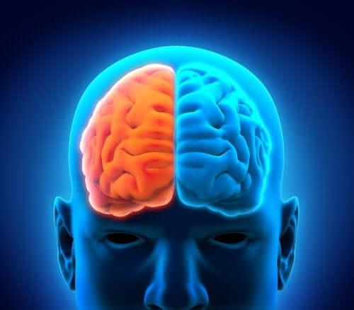 대뇌반구 절제술의 후유증