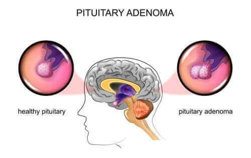 뇌하수체 선종의 원인과 증상