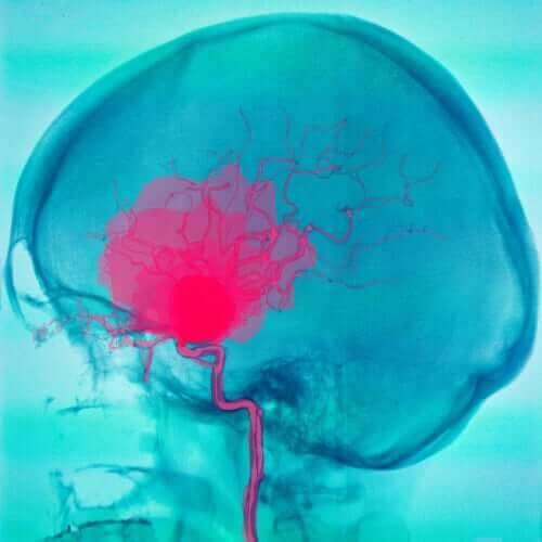 뇌성 마비에 관해 알아야 할 모든 것