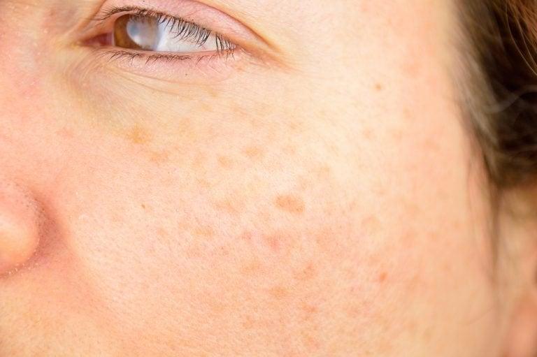 가장 흔하게 얼굴에 나타나는 문제와 치료법