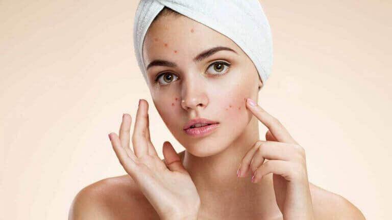 가장 흔한 얼굴 피부 트러블과 치료 방법