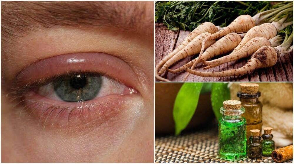 눈꺼풀의 부기를 빼는 데 도움이 되는 5가지 가정 요법