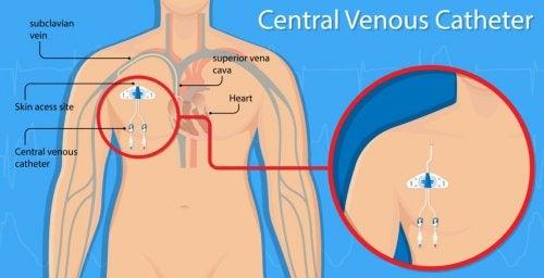 혈관 천공 및 중심정맥 카테터