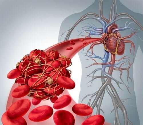 심부정맥 혈전증의 혈류