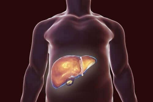 담낭 건강을 위한 식단