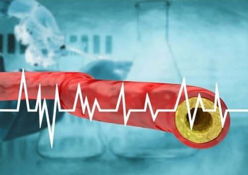 뇌졸중 위험 요인 및 증상