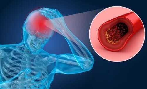 뇌졸중의 위험 요인 및 증상