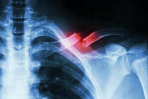 피로골절은 신체적 활동의 과부하로 인해 발생