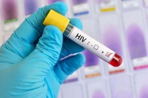 세계 에이즈의 날에 대한 모든 것을 알아보자
