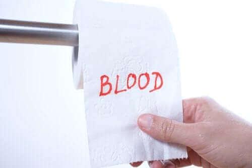 직장 출혈이 발생하는 이유