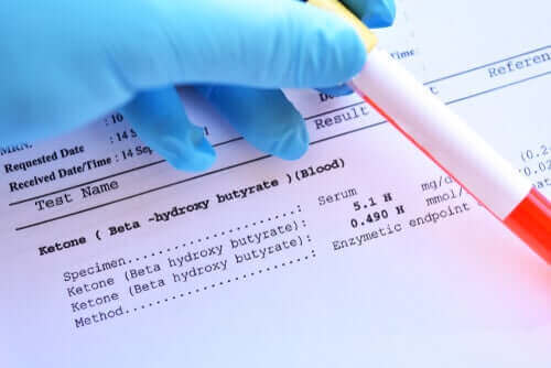 얼마나 자주 혈액 검사를 받아야 할까?