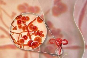 마이코플라스마 제니탈리움의 원인, 증상 및 치료