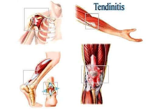 연조직 과용으로 인한 부상