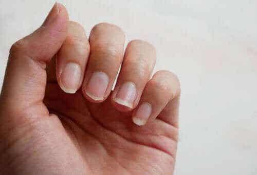 부러지는 손톱을 강화하는 천연 성분 4가지