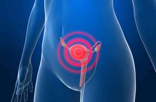 자궁선근증의 증상 및 치료