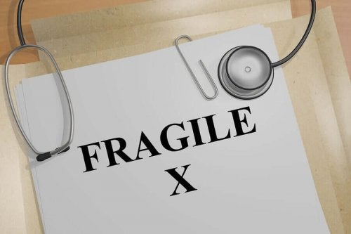 취약 X 증후군의 증상과 치료