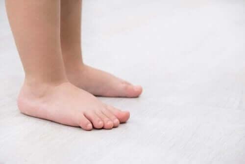 평발의 특성 및 치료