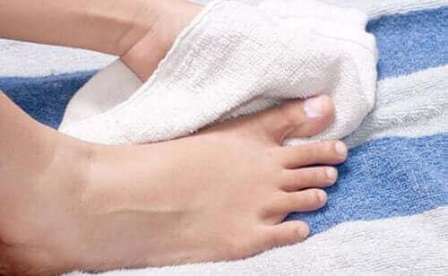 손발톱 내생 치료