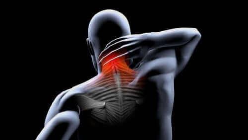 근육 구축의 예방 및 치료