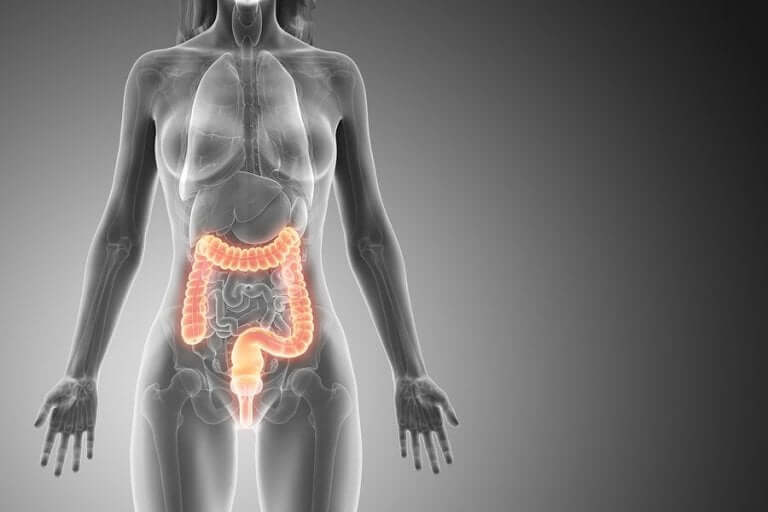 결장 폴립의 특성과 증상