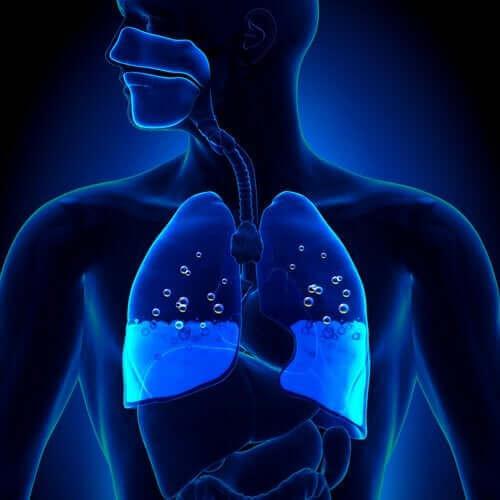 폐부종의 증상 및 원인