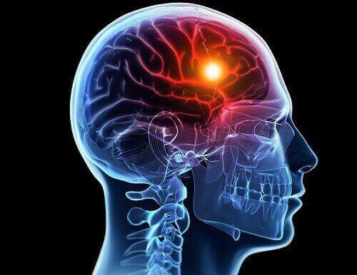 뇌저산소증의 유형