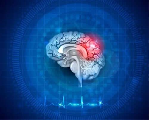 뇌저산소증의 원인