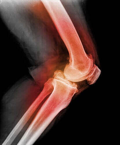 슬개골 탈구의 원인 및 증상