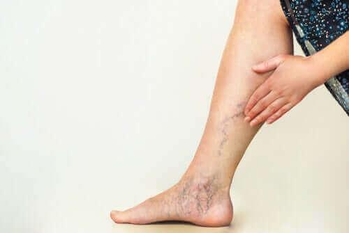 다리 순환을 개선하기 위한 기본 운동