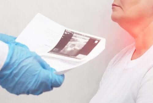 갑상선 결절의 증상 및 원인