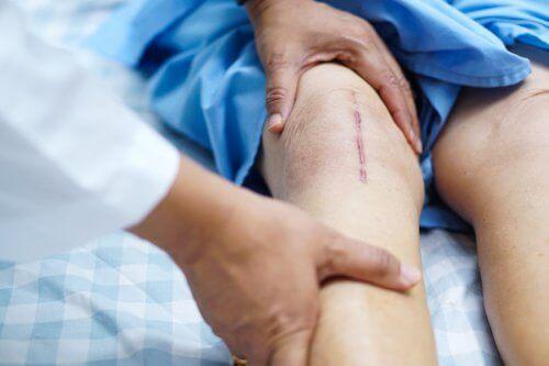 무릎 이식 이후의 회복