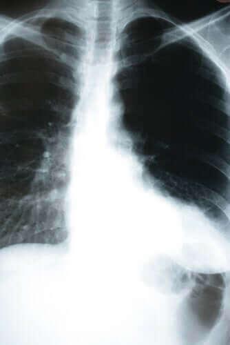 폐렴이 신체에 미치는 영향