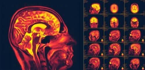 뇌의 신경가소성은 무엇일까
