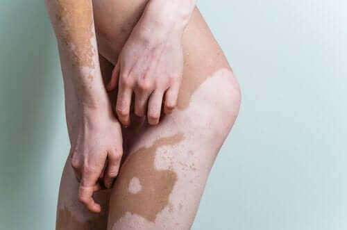 피부과적 교정 메이크업