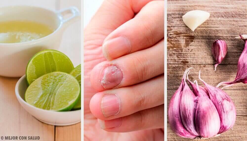 손발톱진균 감염을 치료하는 가정 요법