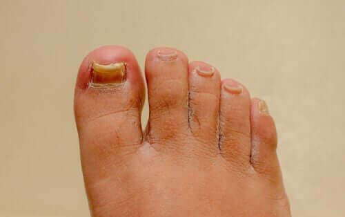 손발톱진균증 치료법은 효과가 있을까