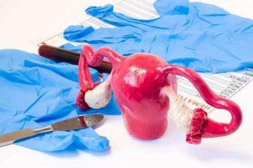 자궁절제술의 종류