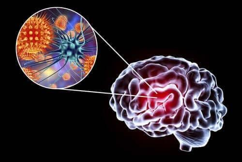뇌염의 원인, 증상과 치료법