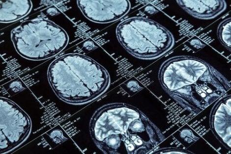 반사회적 행동과 뇌 구조