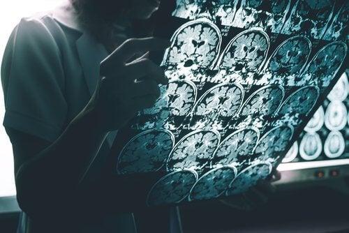 알츠하이머 치매 증상