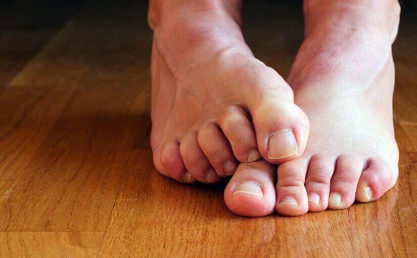 손톱 곰팡이가 통증을 유발할까?