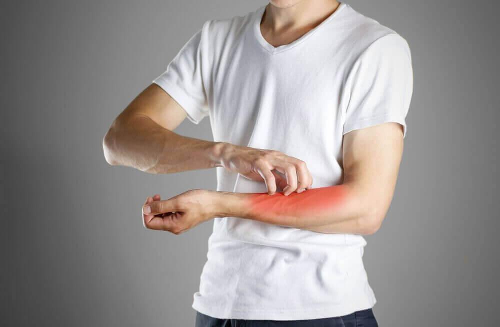 습진의 원인, 증상, 진단 및 치료
