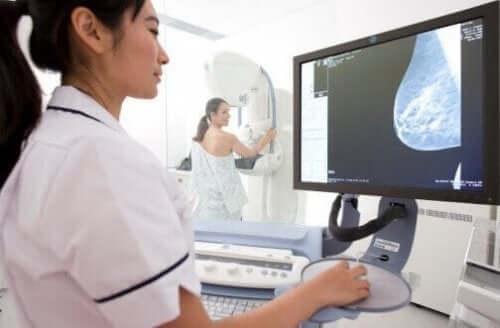 유방암 검사 엑스레이