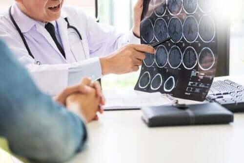 의사 뇌 스캔