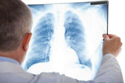 비정형 폐렴은 무엇인가