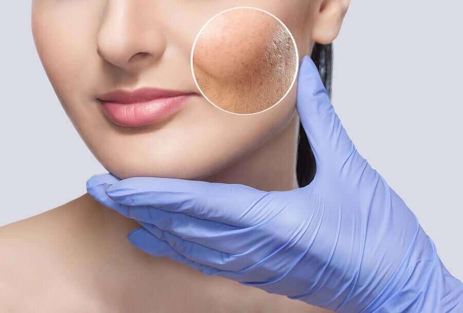 반응성 피부의 원인