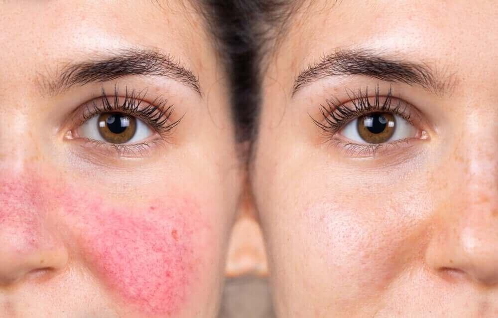 반응성 피부란 무엇일까?